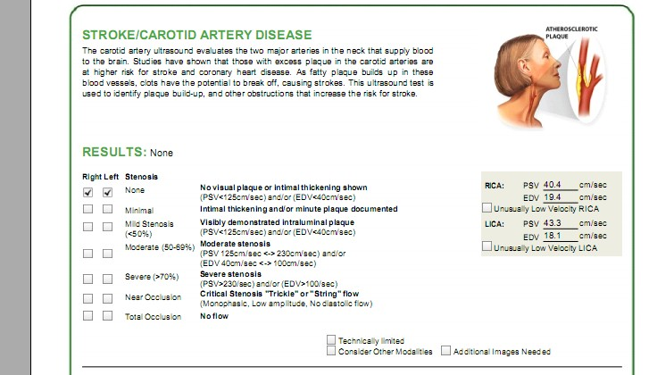 carotid test